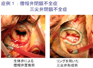 心臓 弁膜 症 手術 後