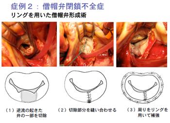 弁膜 症 手術 心臓